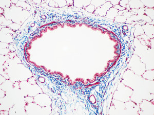 Animal Tissue Samples Masson's Trichrome Stain (Rat Airway Section)